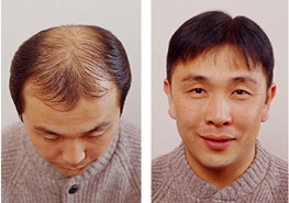 Exoderm hair implant